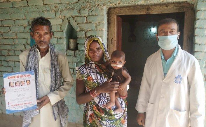महोबा : कटे होंठ की मुफ्त सर्जरी कर लौटाई मासूम की मुस्कान